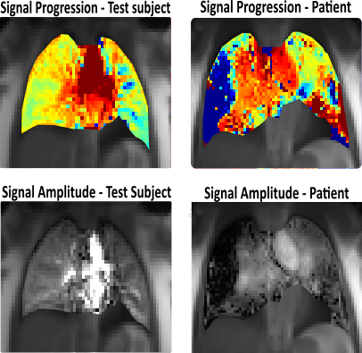 MRI images of local blood flow in the lung tissue